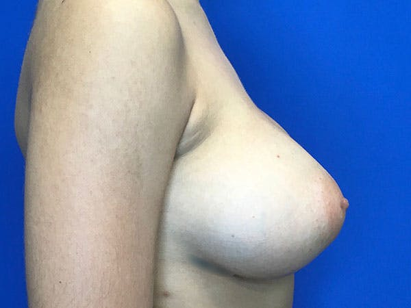 Breast Augmentation Gallery - Patient 8059691 - Image 8