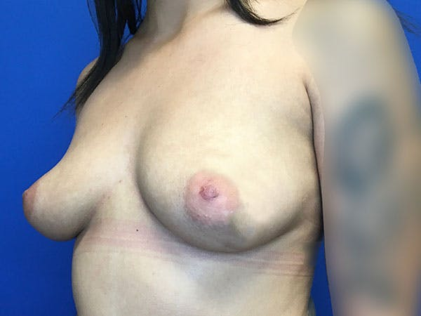 Breast Augmentation Gallery - Patient 8059691 - Image 3