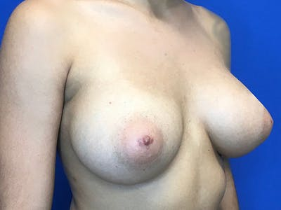 Breast Augmentation Gallery - Patient 8059691 - Image 6