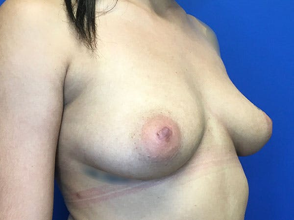 Breast Augmentation Gallery - Patient 8059691 - Image 5