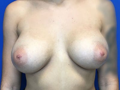 Breast Augmentation Gallery - Patient 8059691 - Image 2