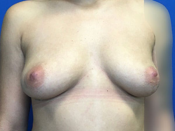 Breast Augmentation Gallery - Patient 8059691 - Image 1