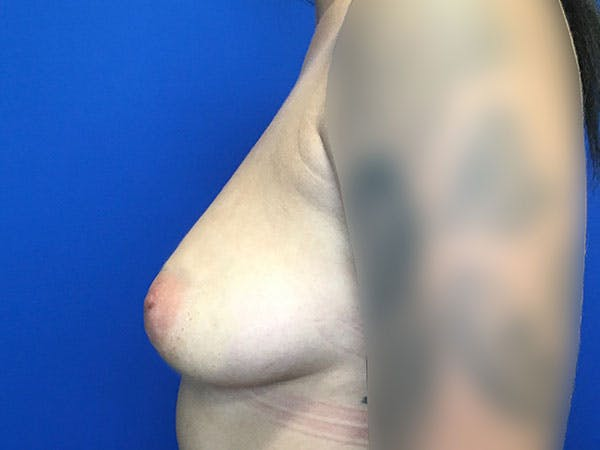 Breast Augmentation Gallery - Patient 8059691 - Image 9