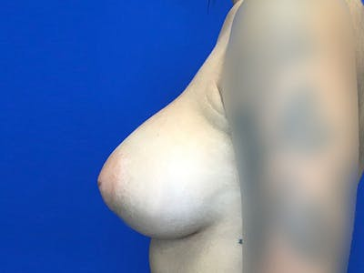 Breast Augmentation Gallery - Patient 8059691 - Image 10