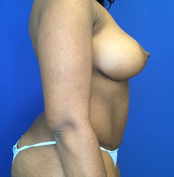 Mommy Makeover Gallery - Patient 8341555 - Image 4