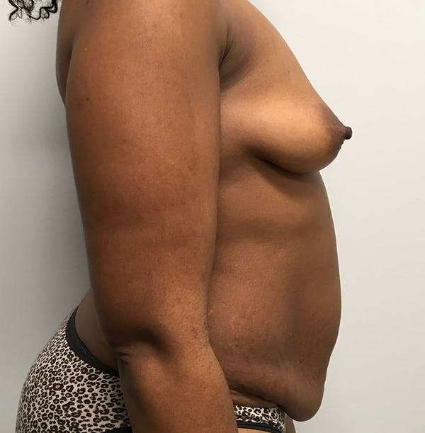 Mommy Makeover Gallery - Patient 8341555 - Image 3