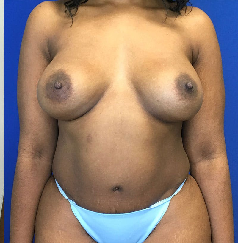 Mommy Makeover Gallery - Patient 8341555 - Image 2