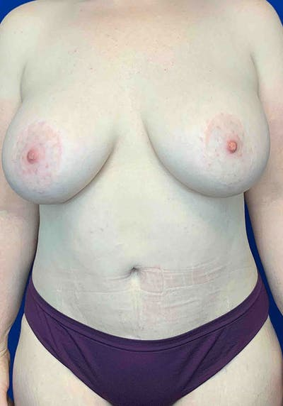 Mommy Makeover Gallery - Patient 8341566 - Image 2