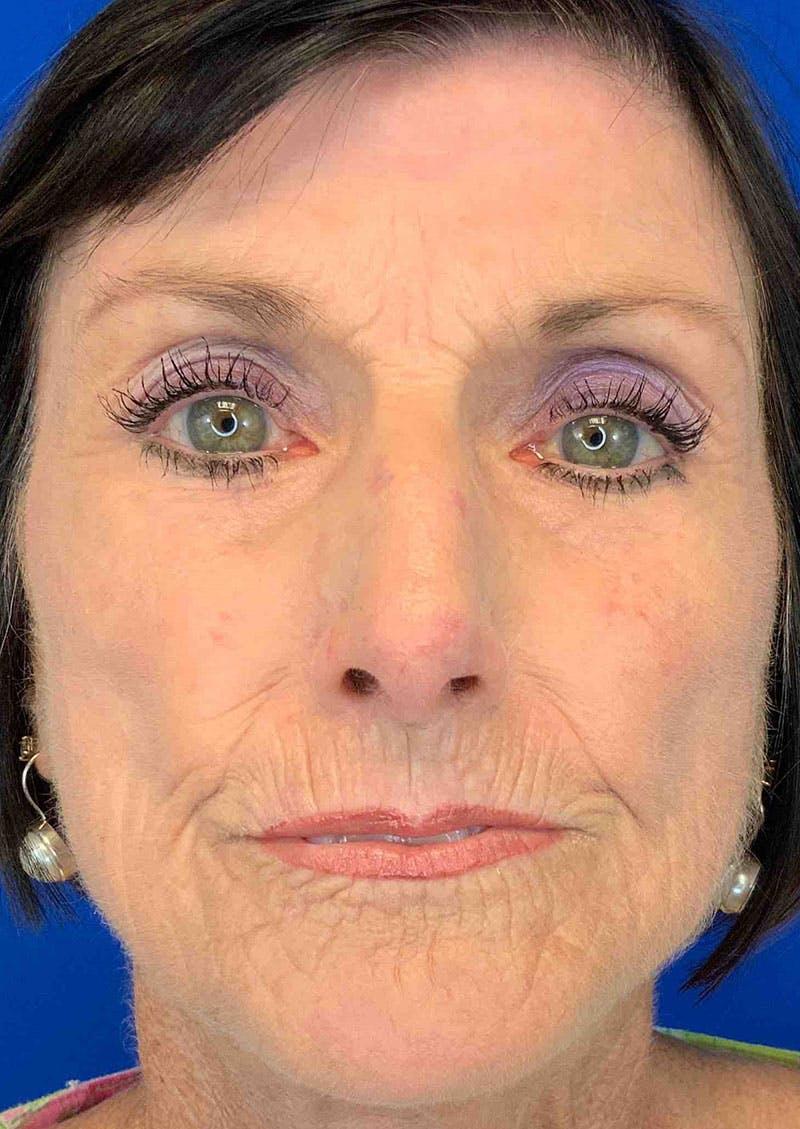Laser Skin Resurfacing Gallery - Patient 8375930 - Image 2