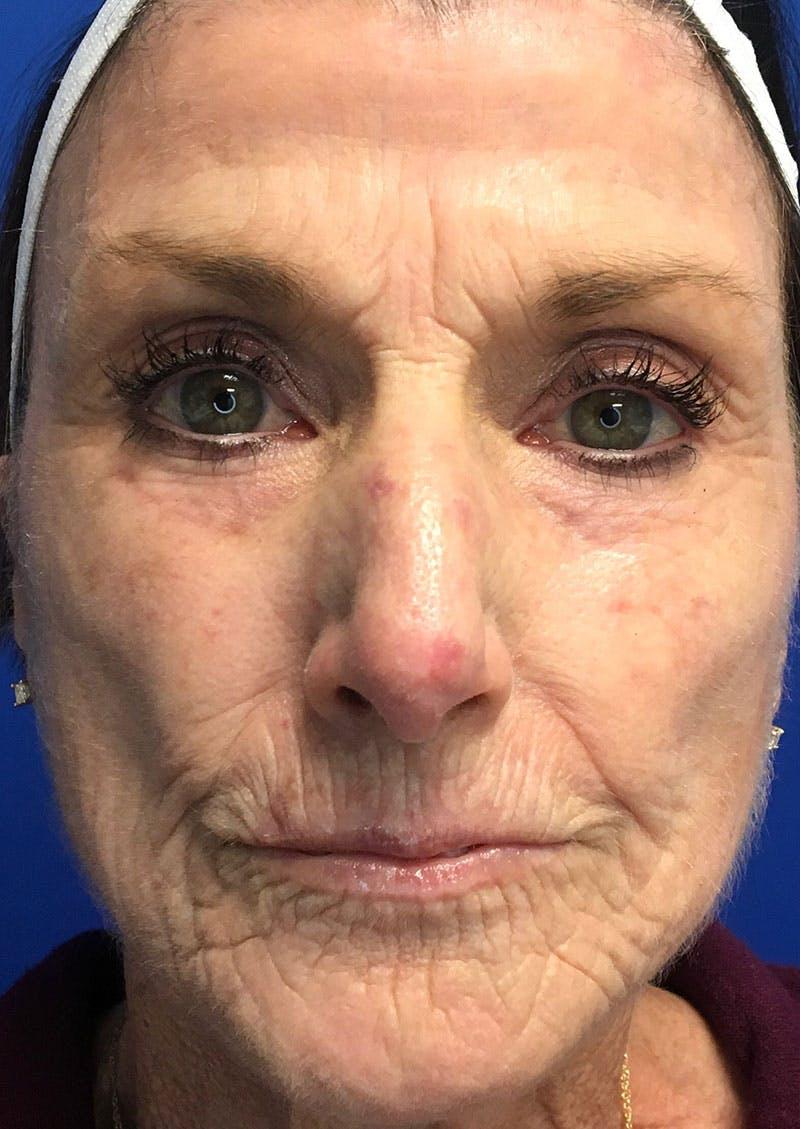 Laser Skin Resurfacing Gallery - Patient 8375930 - Image 1