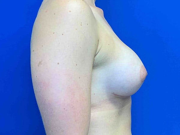 Breast Augmentation Gallery - Patient 8375932 - Image 4