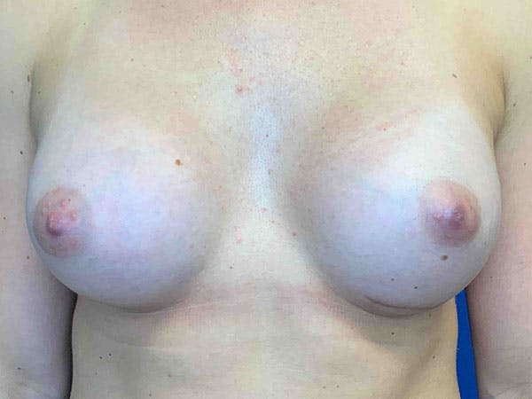 Breast Augmentation Gallery - Patient 8375932 - Image 2