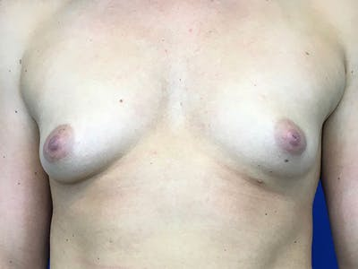 Breast Augmentation Gallery - Patient 8375932 - Image 1