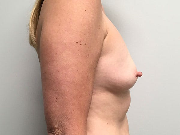Breast Augmentation Gallery - Patient 8375938 - Image 3