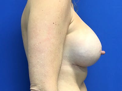 Breast Augmentation Gallery - Patient 8375938 - Image 4