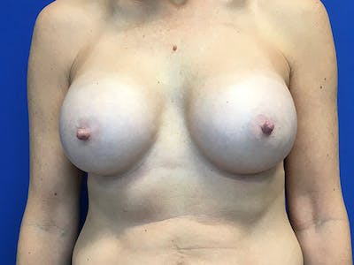 Breast Augmentation Gallery - Patient 8375938 - Image 2