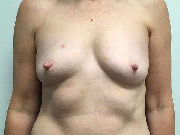 Breast Augmentation Gallery - Patient 8375938 - Image 1