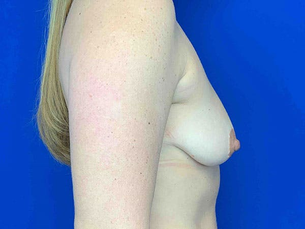 Breast Augmentation Gallery - Patient 8375941 - Image 3