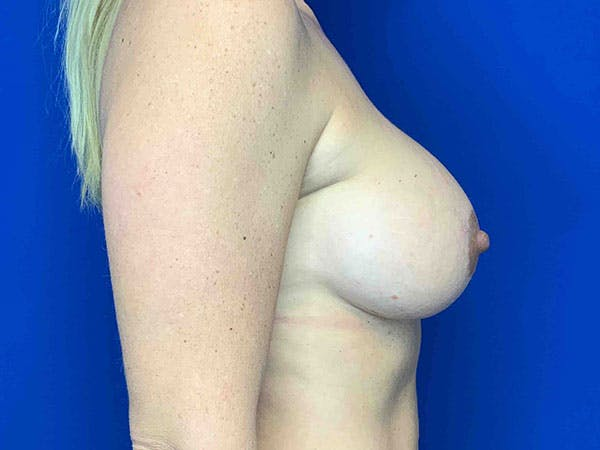 Breast Augmentation Gallery - Patient 8375941 - Image 4