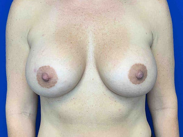 Breast Augmentation Gallery - Patient 8375941 - Image 2