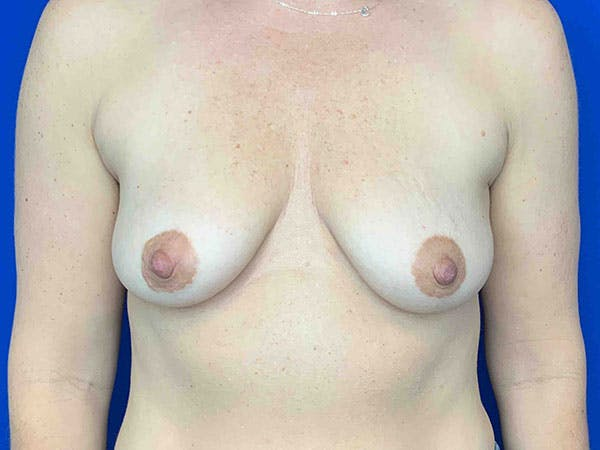 Breast Augmentation Gallery - Patient 8375941 - Image 1