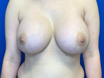 Breast Augmentation Gallery - Patient 8375972 - Image 2