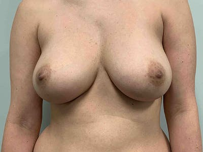 Breast Augmentation Gallery - Patient 8375972 - Image 1