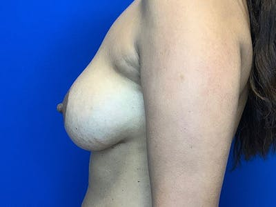 Breast Augmentation Gallery - Patient 8375976 - Image 4