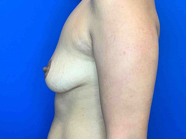 Breast Augmentation Gallery - Patient 8375976 - Image 3