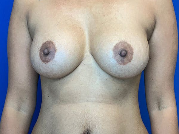Breast Augmentation Gallery - Patient 8375976 - Image 2