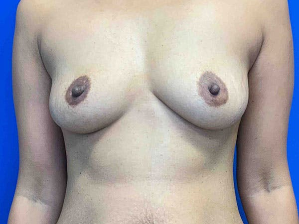 Breast Augmentation Gallery - Patient 8375976 - Image 1