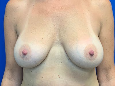 Breast Augmentation Gallery - Patient 8376013 - Image 2