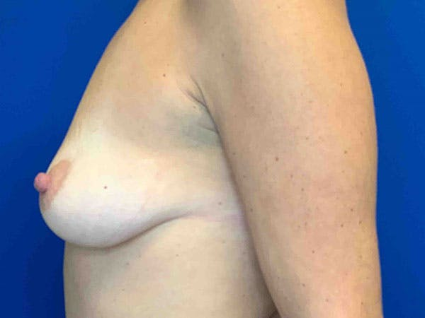 Breast Augmentation Gallery - Patient 8376013 - Image 3
