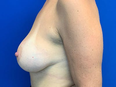 Breast Augmentation Gallery - Patient 8376013 - Image 4
