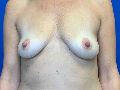 Breast Augmentation Gallery - Patient 8376013 - Image 1