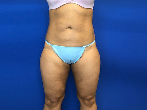 Liposuction Gallery - Patient 8376496 - Image 2