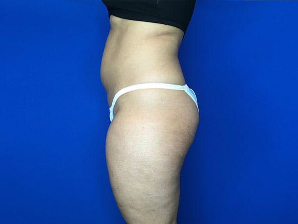 Liposuction Gallery - Patient 8376496 - Image 3
