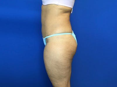 Liposuction Gallery - Patient 8376496 - Image 4