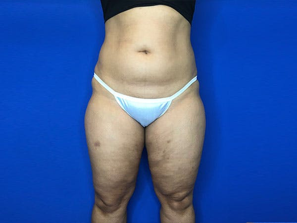 Liposuction Gallery - Patient 8376496 - Image 1