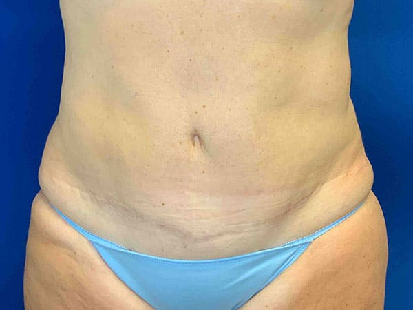 Liposuction Gallery - Patient 8376513 - Image 2