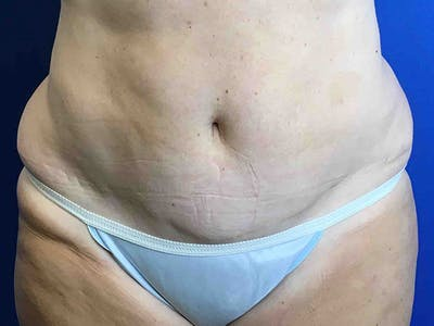 Liposuction Gallery - Patient 8376513 - Image 1