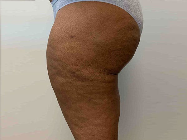 Liposuction Gallery - Patient 8376544 - Image 4