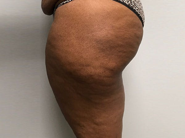 Liposuction Gallery - Patient 8376544 - Image 3