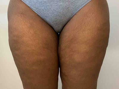 Liposuction Gallery - Patient 8376544 - Image 2