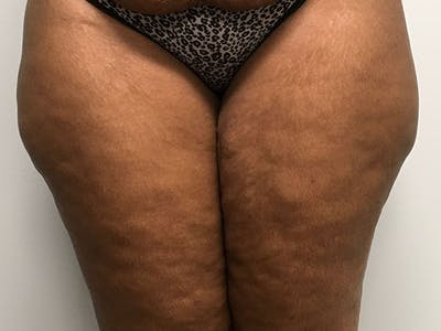 Liposuction Gallery - Patient 8376544 - Image 1