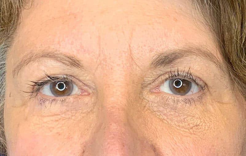 Brow Lift Gallery - Patient 9605607 - Image 2