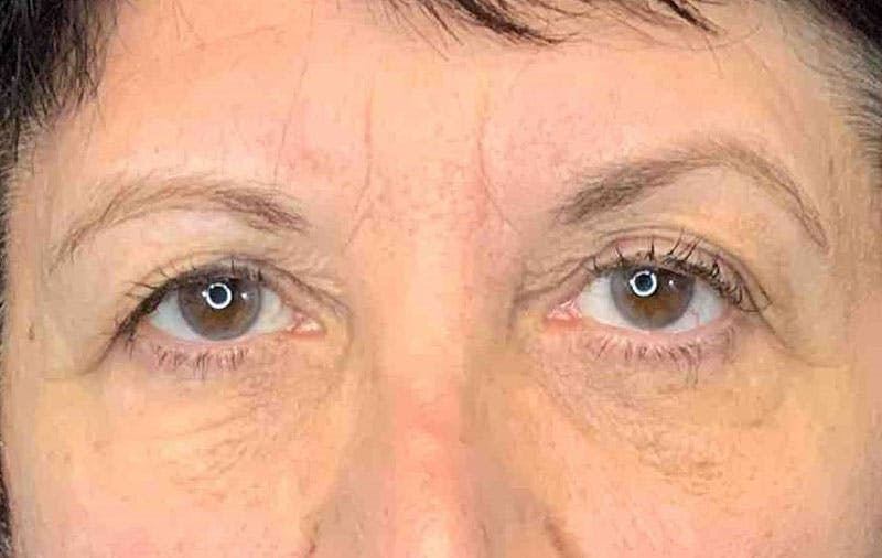 Brow Lift Gallery - Patient 9605607 - Image 1