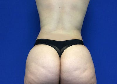 Liposuction Gallery - Patient 10945505 - Image 8