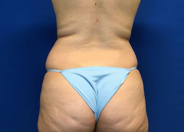 Liposuction Gallery - Patient 10945505 - Image 7