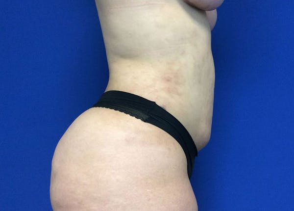 Liposuction Gallery - Patient 10945505 - Image 4